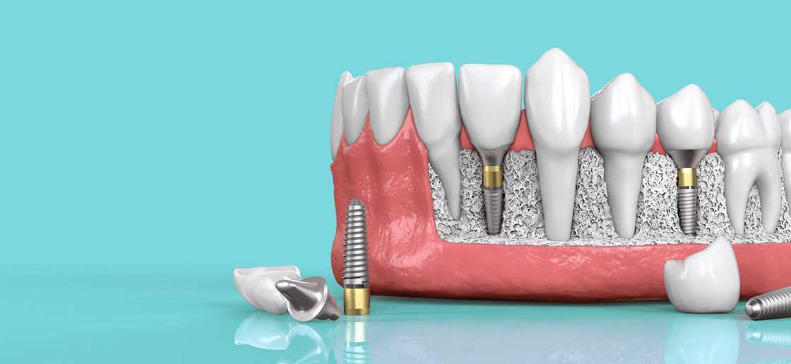 Dental Implants – A Guide to Getting Your Teeth Implanted